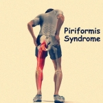 มีโรคกล้ามเนื้อสะโพกหนีบเส้นประสาท (Piriformis Syndrome)