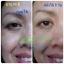 Fidela Anti Aging Serum Fidela ฟิเดล่า เซรั่มโบท็อกซ์ ขนาดบรรจุ (27 ml.) thumbnail 10