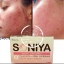 Soniya (โซนิญ่า) อาหารเสริมลดสิว thumbnail 4