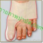 Healtoe บำบัดนิ้วเท้าคด แบบสวมใส่รองเท้าได้