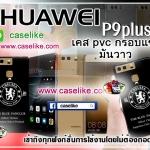 เคส huawei P9 plus เชลซี ภาพให้ความคมชัด มันวาว สีสดใส